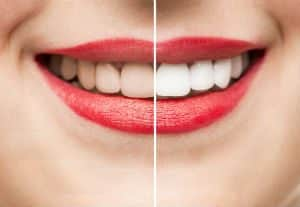 Teeth Whitening in Renton